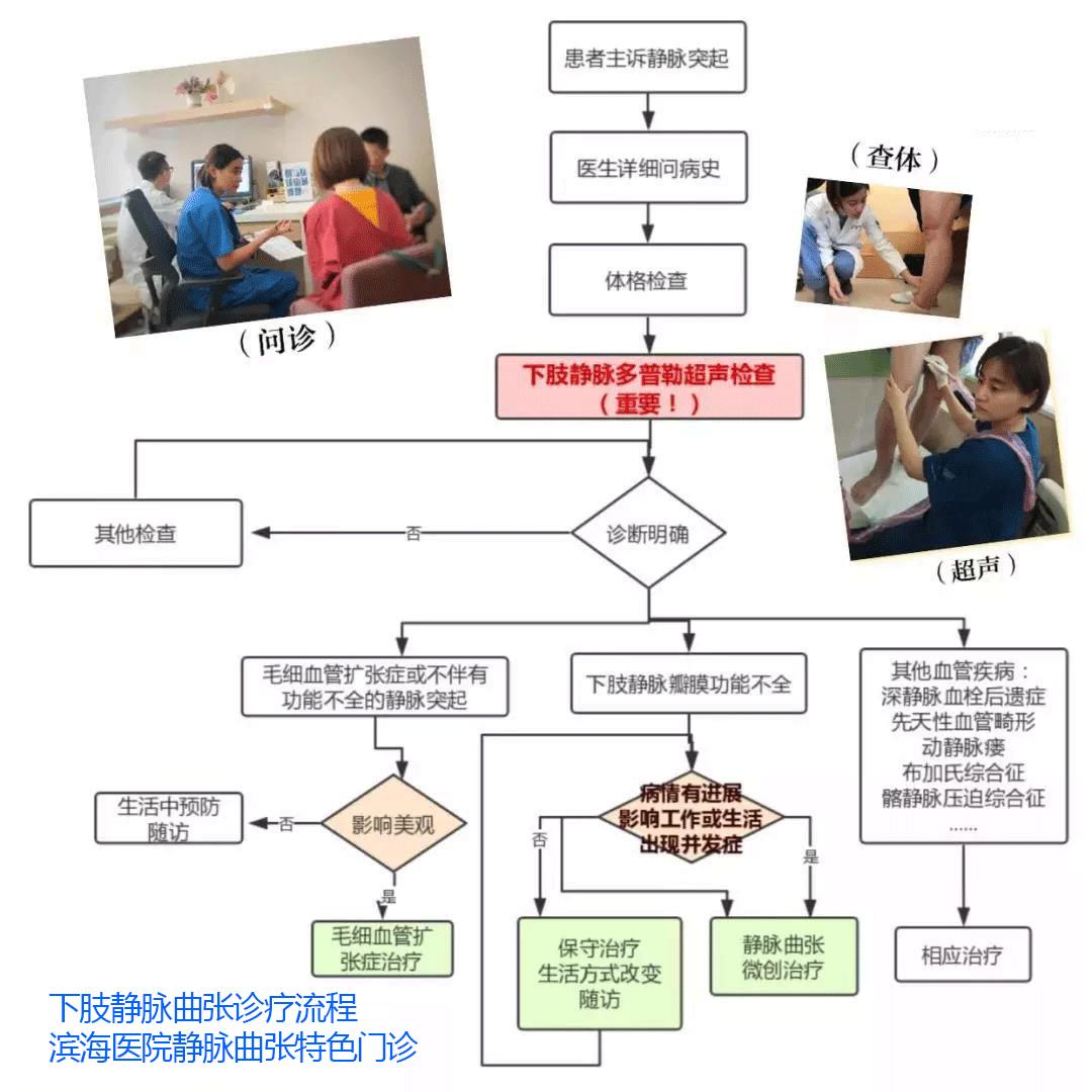 怎么判断下肢静脉曲张呢(图7)
