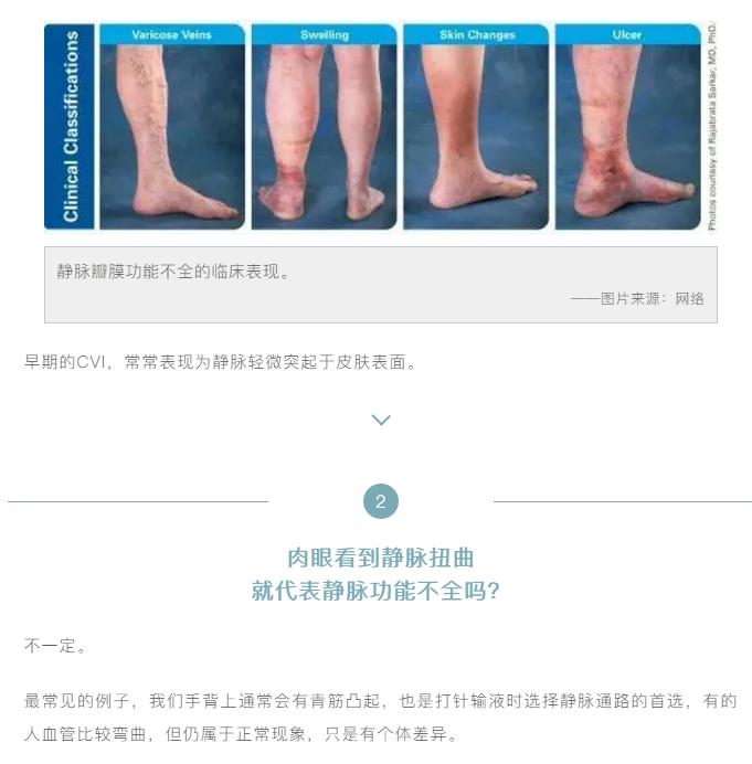 怎么判断下肢静脉曲张呢(图3)